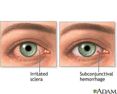 نصائح للتخلص احمرار العينين